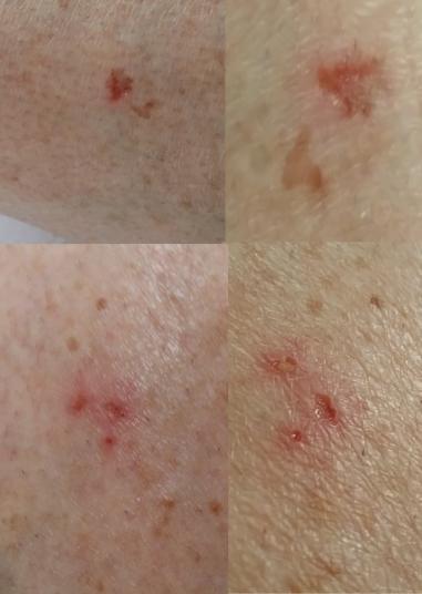 leg implant holes